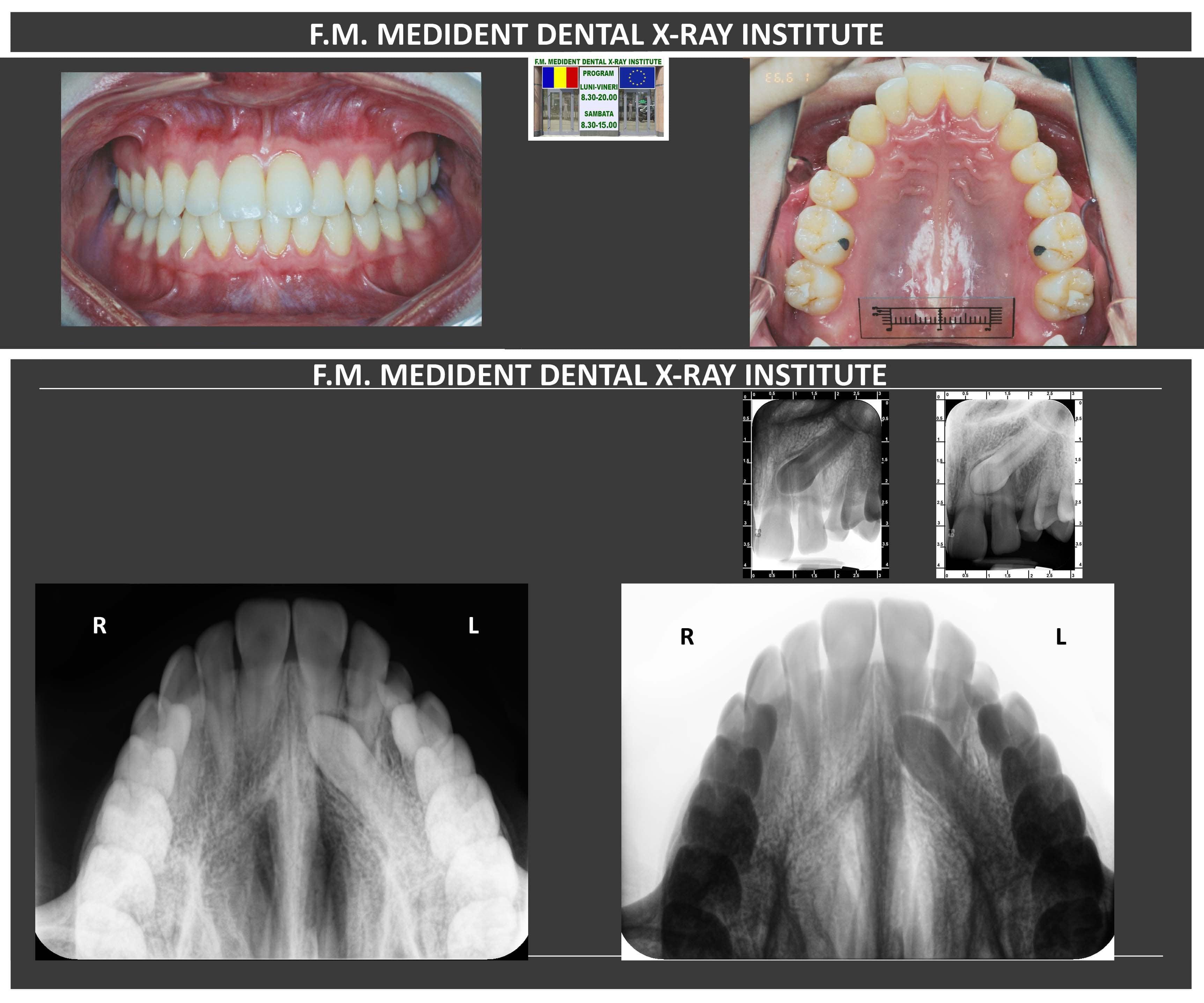 F.M. Medident - Xray for treatment
